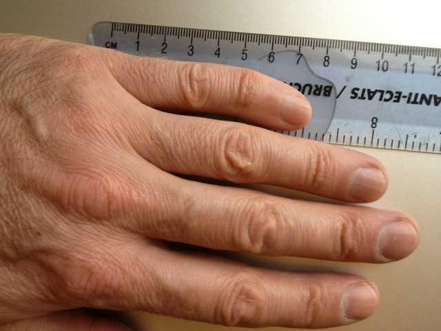 hand1-1.jpg