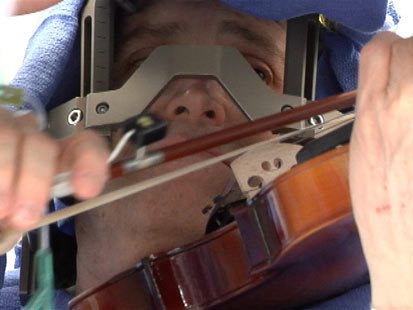 Violinist played his instrument as surgeons performed deep brain stimulation.